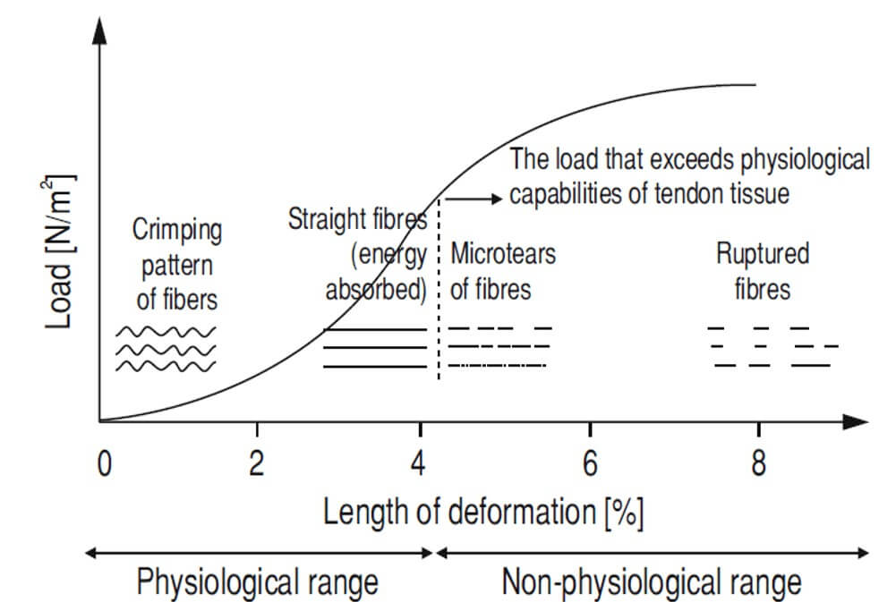 Load-deformation relationship chart. In the physiological range, there is an energy absorption and elastic deformation of fibers. However, when the load exceeds the physiological capabilities, microtears of fibers appear, and the curve enters the non-physiological range. Further, progressive load results in partial and complete rupture of fibers